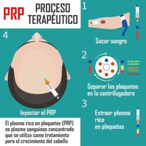 tratamiento de prp para el pelo